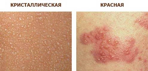 Потница у детей фото симптомы и лечение. Мази и крема от потницы 90