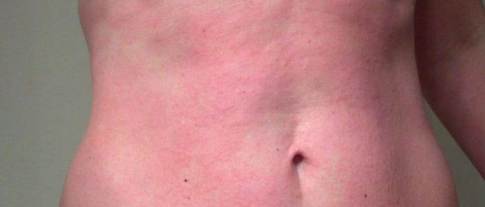 Аллергия от пота фото